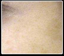 紫外線トラブルによるシミへの効果画像