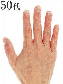 50代の手の甲