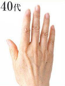 40代の手の甲