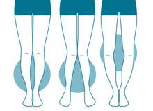 脚の形が気になる方用の美脚ラインケア