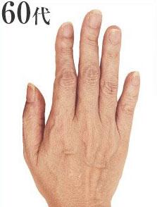 60代の手の甲